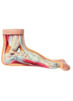 NS 5 Hallux Valgus Model